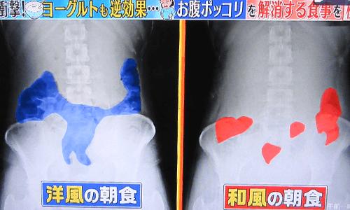 腸のガスのレントゲン写真